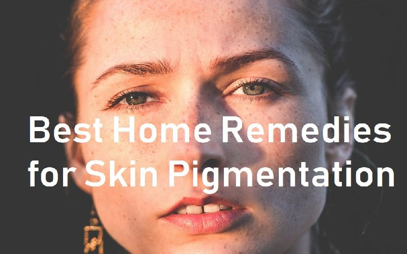 5 Best Home Remedies for Skin Pigmentation That Help Treat It Naturally