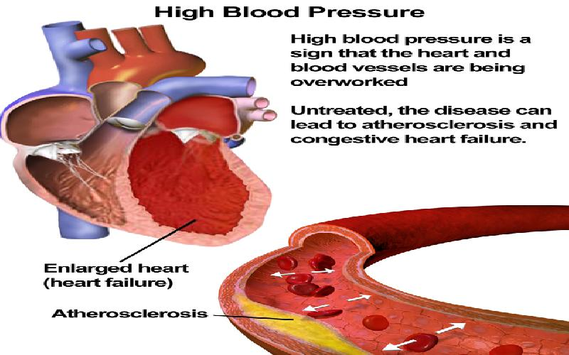 Indications You Should Have Your Blood Pressure Checked