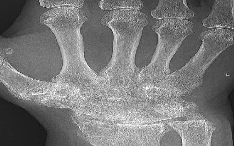 The Effects of Rheumatoid Arthritis on the Hands