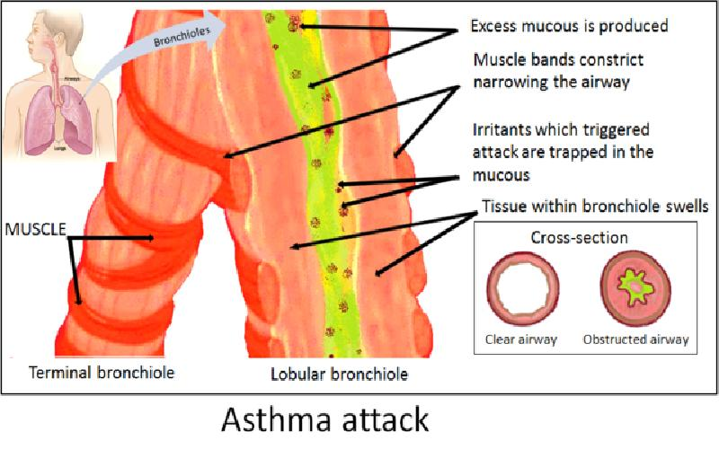 Asthma Treatment: An Overview of Quick Relief Asthma Medicines