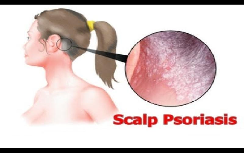 Psoriasis on Scalp : 10 Home Remedies for Scalp Psoriasis