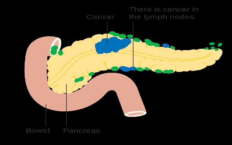 Is it Possible to Detect Early Symptoms of Pancreatic Cancer?