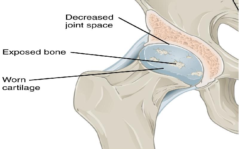 Degenerative Arthritis Explained