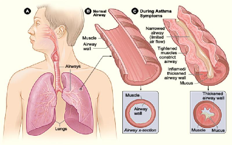 The Pathophysiology of Asthma