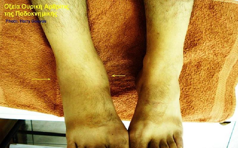 Causes of Arthritis Pain in Feet