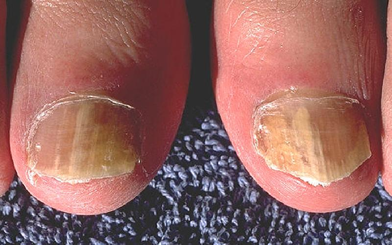 Fighting Fungal Nail Infection
