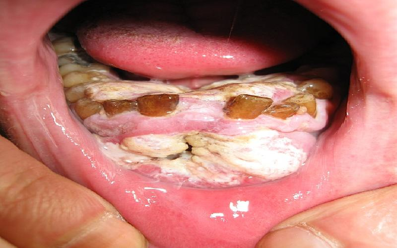 Oral Cancer: Causes, Symptoms, Diet, Treatment and Surgical Procedures