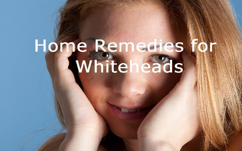 7 Best Home Remedies for Whiteheads on Face, Nose, Chin and Forehead