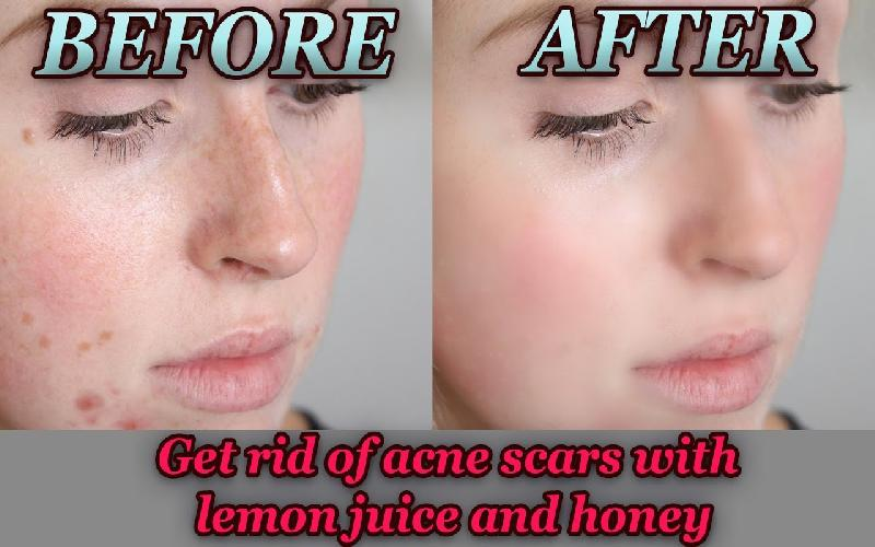 3 Effective Honey and Lemon Face Masks for Acne Scars