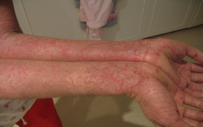 Natural Remedies for Treating Eczema at Home