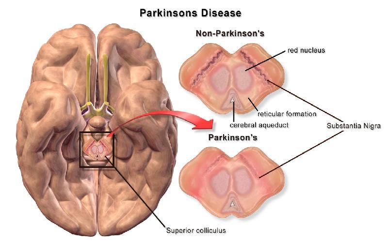 Parkinson's Disease - Symptoms, Causes and Treatment
